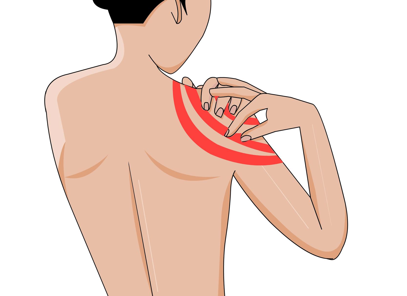 Schulterschmerzen und was du dagegen tun kannst