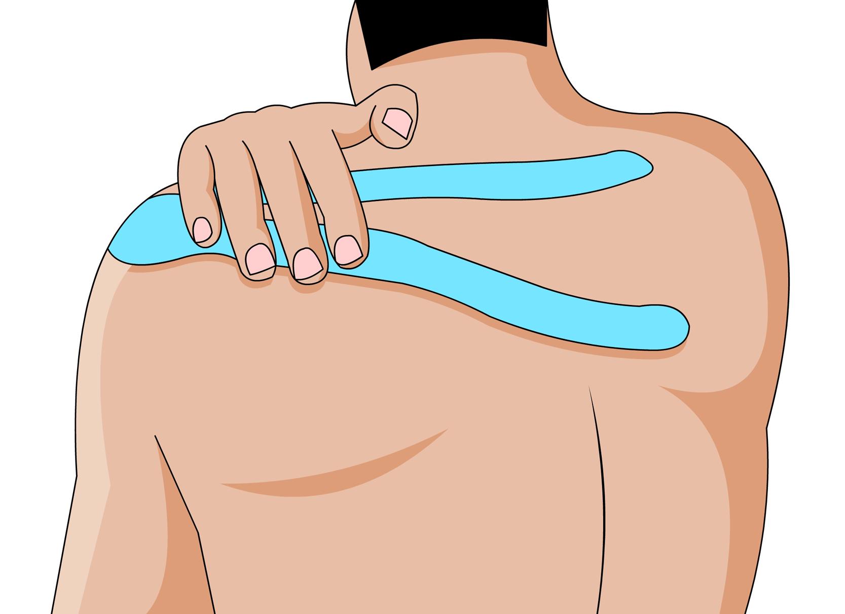 Mit Der Wunderwaffe Tapen Gegen Nackenschmerzen Vorgehen