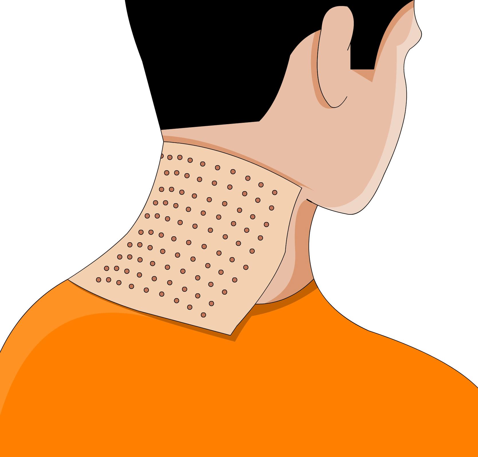 Wärmepflaster Gegen Nackenschmerzen