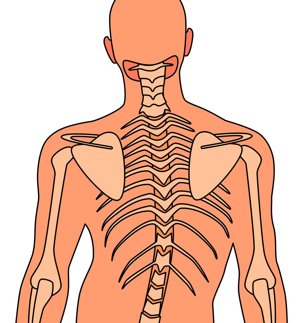 Nackenschmerzen durch Skoliose (verkrümmte Wirbelsäule)