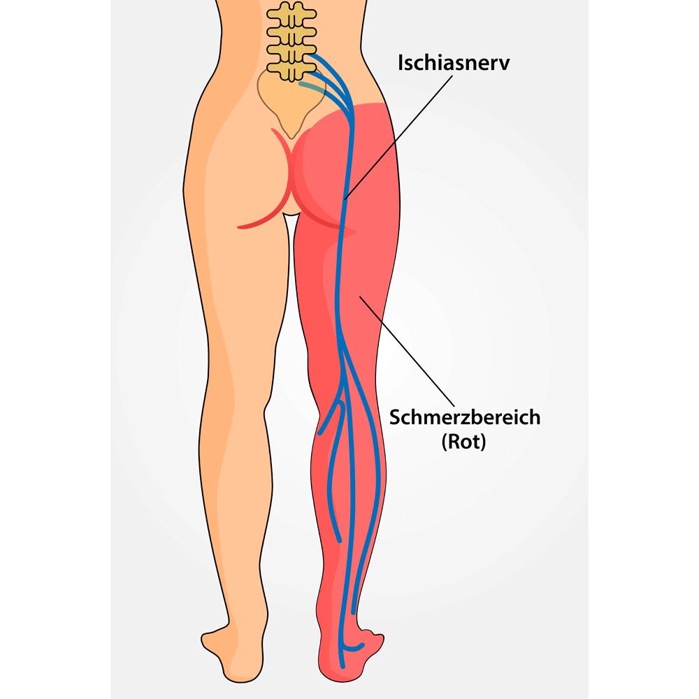 Erfreut Weg Des Ischiasnervs Galerie - Menschliche Anatomie Bilder ...