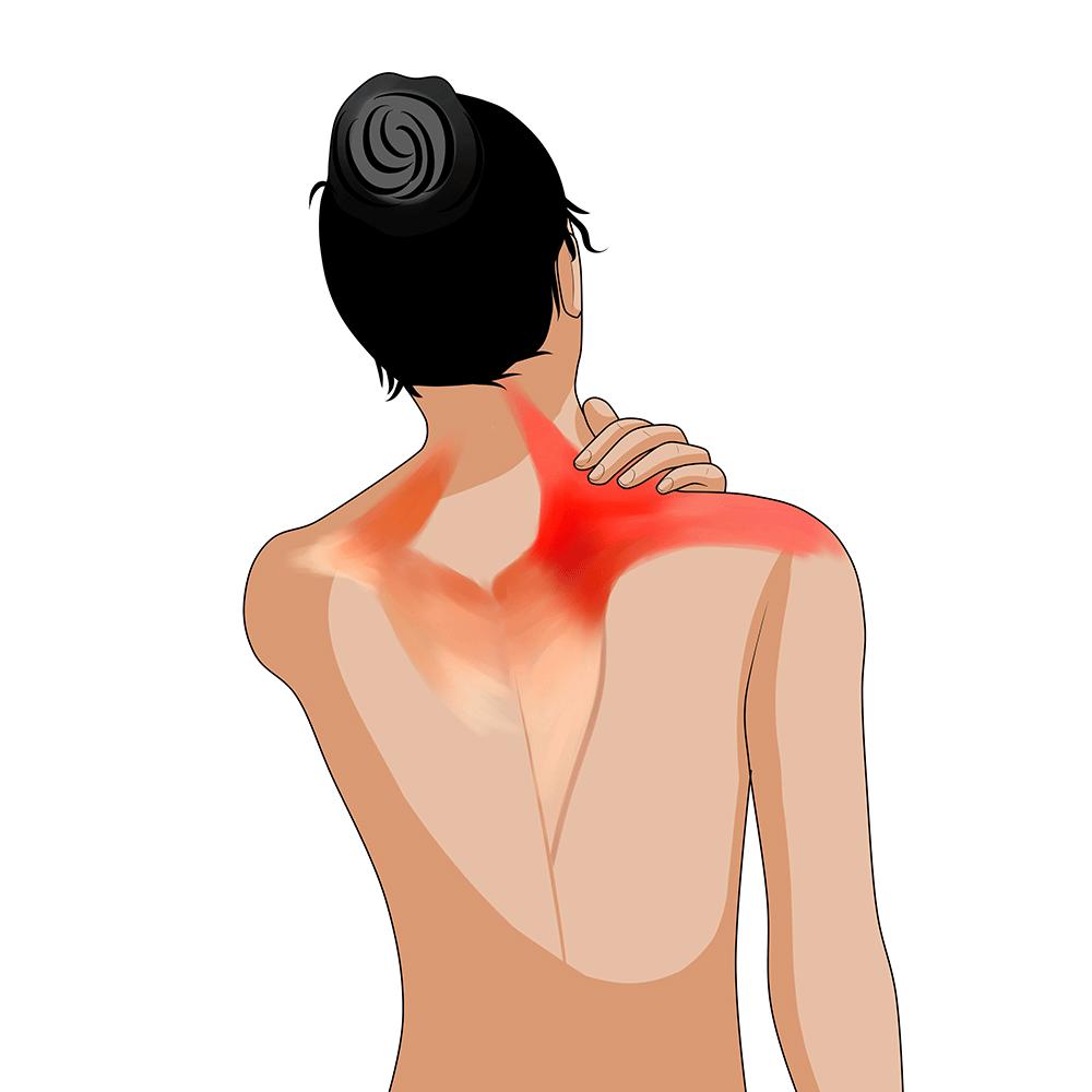 Nacken-Schulter-Arm-Syndrom - Schmerzfrei werden!