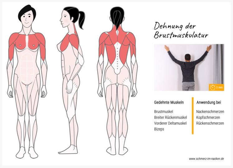 Um Nackenschmerzen loszuwerden, hilft es die verkürzte Brustmuskulatur zu dehnen.
