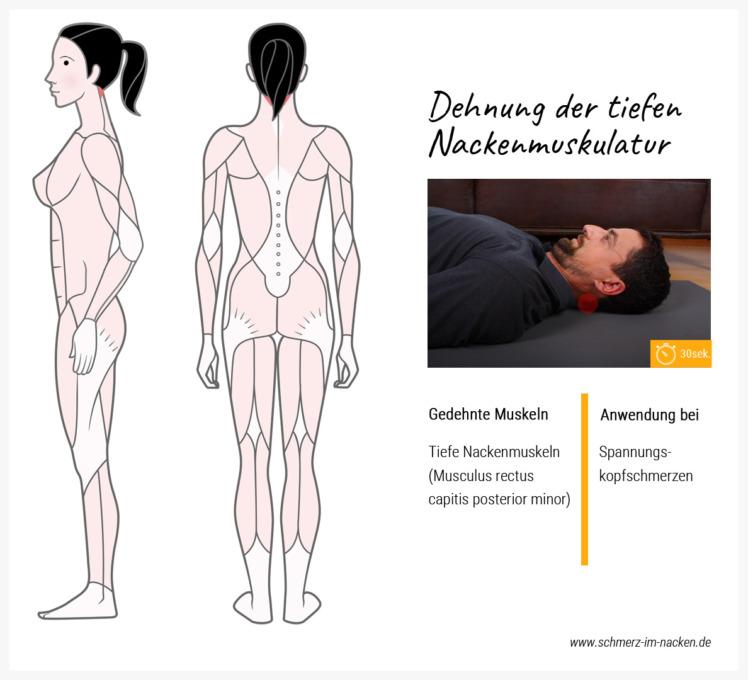 Spannungskopfschmerzen werden häufig von verhärteten tiefen Nackenmuskeln verursacht. Diese Übung hilft dir die Verspannung zu lösen.