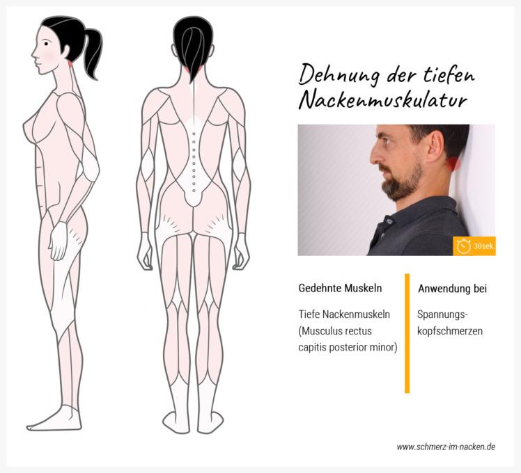 Alternativ lassen sich tiefe Nackenmuskeln auch im Stehen entspannen.