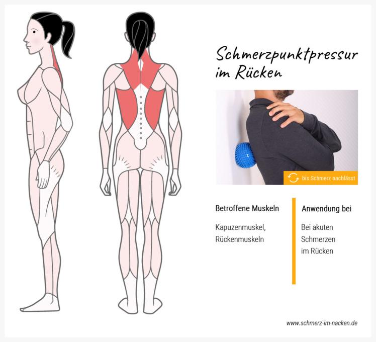 Mit der Schmerzpunkt-Pressur reizt du die Triggerpunkte in schmerzenden Muskeln und löst somit Schmerzen